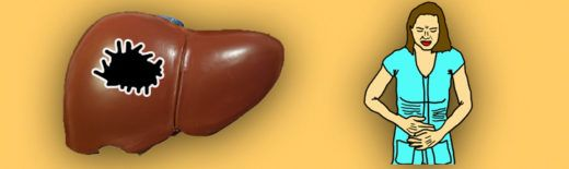 Liver cancer and Pain